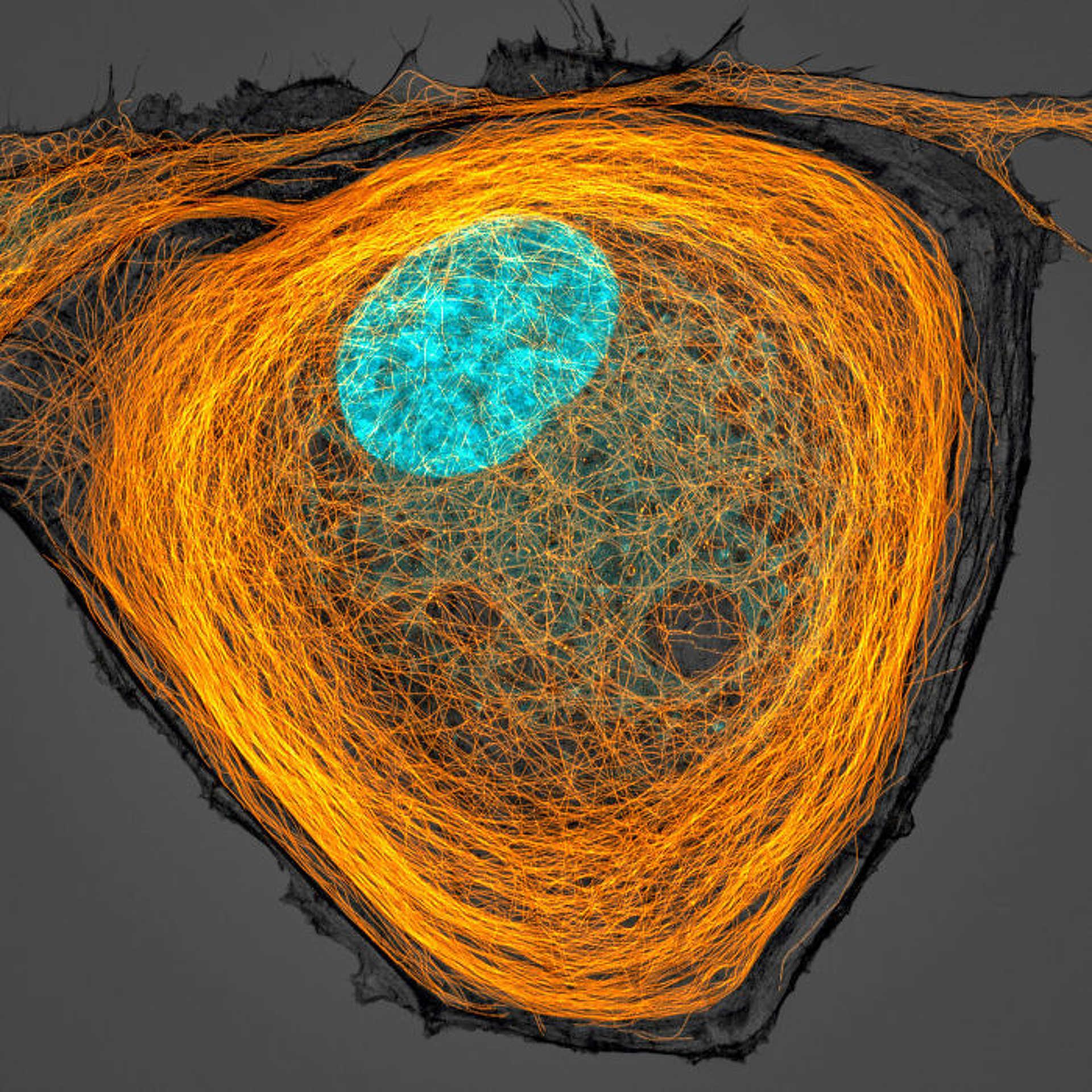 7. hely: Mikrotubulusok (narancssárga) egy sejt belsejében (a mag ciánkék)